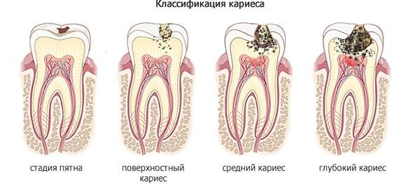 narodnye-metody-lecheniya-zubov-bolit